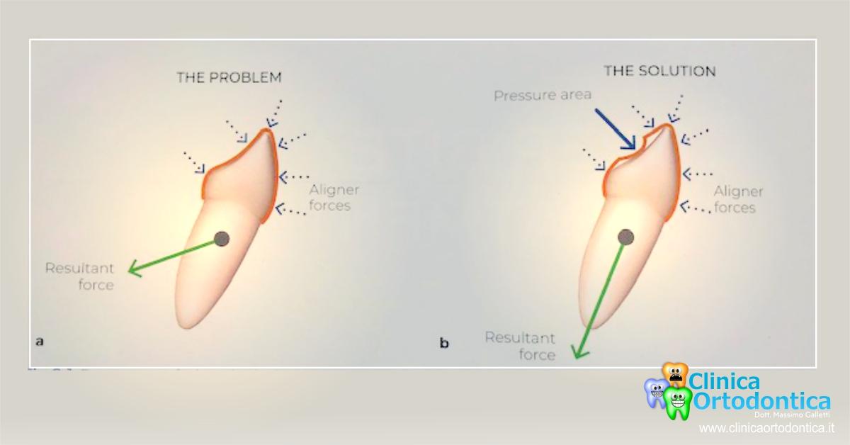 punti di pressione sui denti e cura del morso profondo con ortodonzia invisibile a Palermo