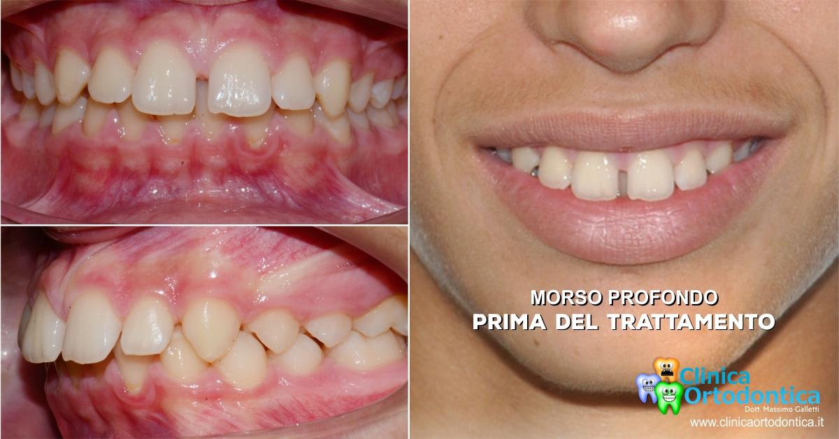 Morso profondo trattato con ortodonzia invisibile Invisalign Palermo