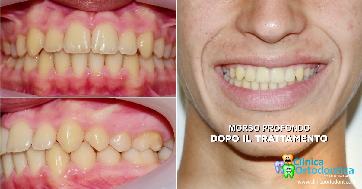 Trattamento ortodontico del morso aperto con ortodonzia invisibile Invisalign Palermo